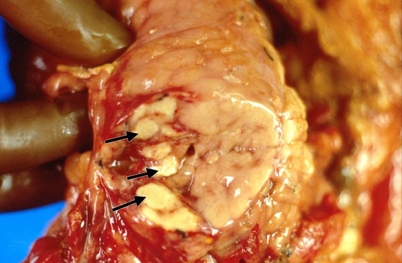 Image 19: Enzymic fat necrosis - pancreas  Image 19: Enzym...